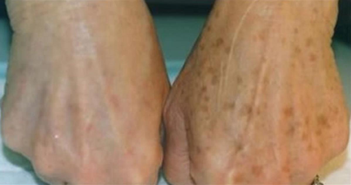 ¿Tienes manchas en tu piel? ¡Con este simple truco desaparecerán enseguida!